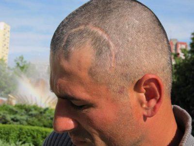 Victima Burcea Constantin, loviturile pe care le-a primit în cap